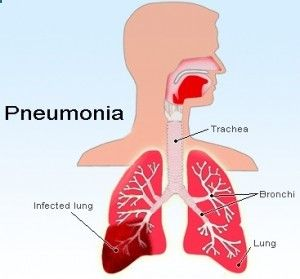 TOP HOME REMEDIES FOR PNEUMONIA
