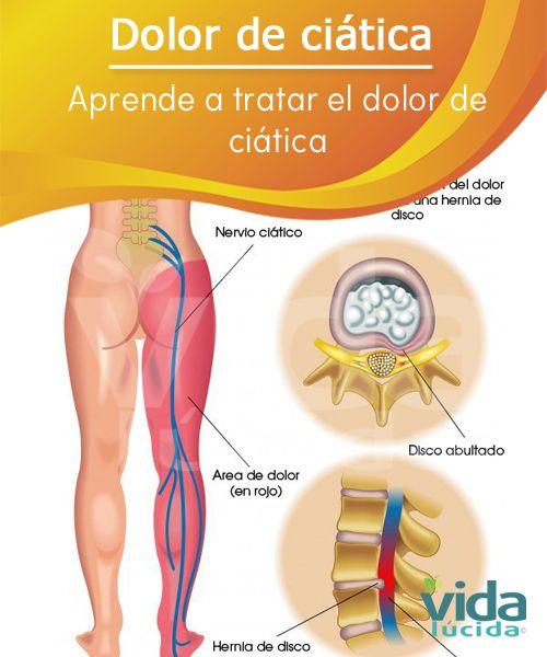 Aprende a tratar el dolor de ciática y aliviarlo de manera rápida.