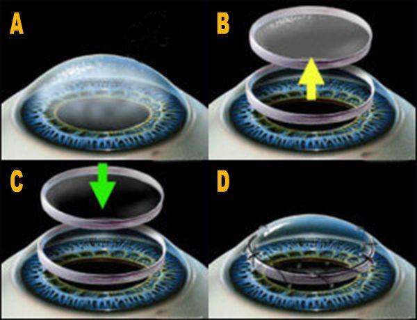 Cheratoplastica ( perforante) Trapianto di Cornea. Le cause più frequenti sono le seguenti: Cheratopatia bollosa (pseudofachici o afachia, distrofia endoteliale di Fuchs), Cheratocono, trapianto ripetuto, Cheratite o postumi di cheratite (causati da virus, batteri, funghi, o Acanthamoeba infezione o perforazione), Distrofie corneali stromali