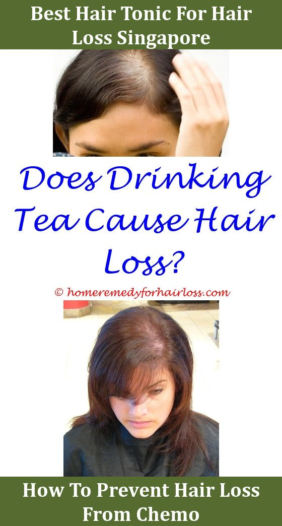 Hair Loss Thinning Hair Removal Pinterest Hair Loss Weight