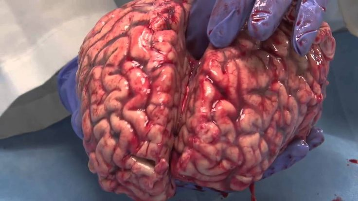 The Unfixed Brain.  In this teaching video, Suzanne Stensaas, Ph.D., Professor of Neurobiology and Anatomy at the University of Utah School of Medicine, demonstrates the properties and anatomy of an unfixed brain.