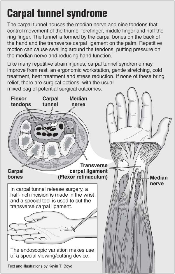 Information graphic about carpal tunnel syndrome and advice on repetitive strain injury, including links to acupressure points for wrist pain.