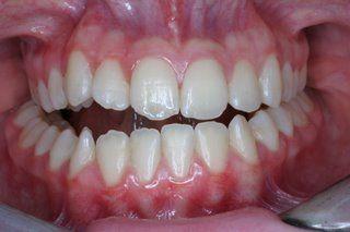 SDB Studio Dentistico Balestro: Chirurgia ortognatica