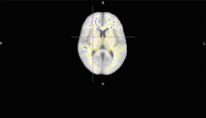 La imagen por resonancia magnética tiene más precisión que las pruebas clíni…