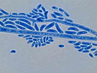 Fusarium oxysporum - micro & macro conidia accumulated along side of hyphae. (X1000+10* LPCB: DMD-108)