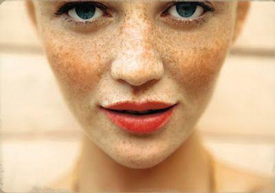 Freckle fabulous