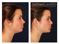 Neck Liposuction / Chin Liposuction 4 - Michael Law MD  Raleigh Plastic Surgery, Raleigh Plastic Surgeon, Plastic Surgeon Raleigh, Plastic Surgery NC, Raleigh Med Spa, The Plastic Surgery Center, Neck Lift, Chin Liposuction, Facial Rejuvenation, Lower Facial Rejuvenation, Raleigh Face Lift, Face Lift, Facial Plastic Surgery