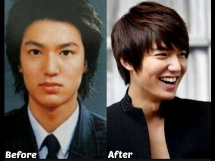 Permalink To Best Korean Actors Plastic Surgery Before And After Photos Combinationskincare Korean Plastic Surgery Plastic Surgery Korean Male Actors