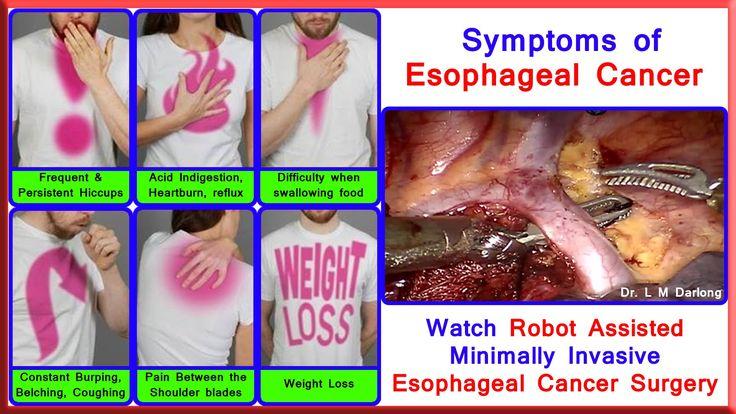 Robotic Esophagectomy by Dr L M Darlong