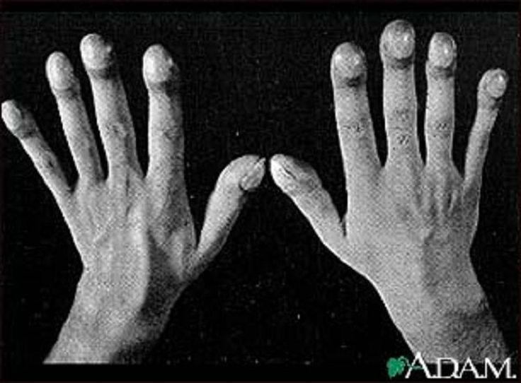 What Causes Clubbed Fingers in COPD Patients?