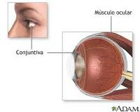 Conjuntivitis tratamiento: Remedios caseros para la conjuntivitis