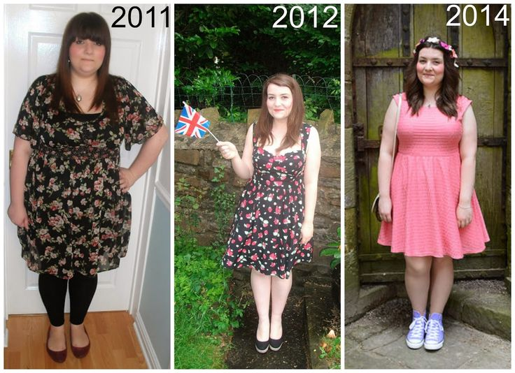 This Is A Photo Before And After 6 Stone Weight Loss