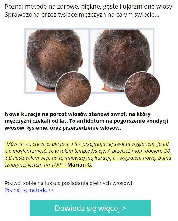 Poznaj metodę na zdrowe, piękne, gęste i ujarzmione włosy! Sprawdzona przez tysiące mężczyzn na całym świecie...  Nowa kuracja na porost włosów stanowi zwrot, na który mężczyźni czekali od lat. To antidotum na pogorszenie kondycji włosów, łysienie, oraz przerzedzenie włosów.