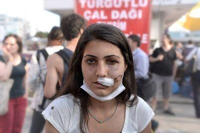 police violence ... and she is fight again and again for justice and freedom.... 3 people dead, 48 of them severely injured