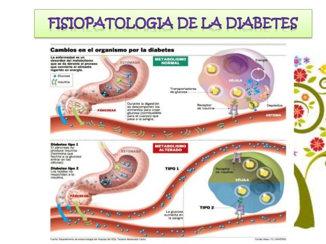 La diabetes es causada por un problema en la forma como el cuerpo produce o utiliza la insulina. Insulina Glucosa Insulina