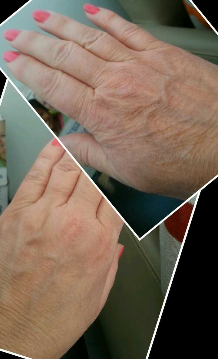 I used Optimera on only one hand for a month and these are the results! One much, much younger looking hand! If can do this for my hands, imagine what it did for my face! Who needs anything else? OPTIMERA by Nerium International http://www.ronya.nerium.com