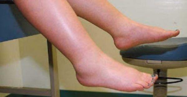 Kατακράτηση υγρών στα πόδια; Ετσι θα την καταπολεμήσετε αμέσως…