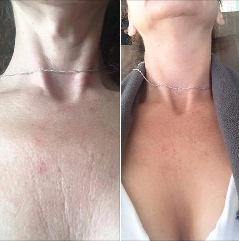 Rodan + Fields is not just for your face! Want your chest to look more smooth in that strapless dress? Check out this Before & After from a woman who started using the REVERSE AND REDEFINE Regimen along with the MACRO Exfoliator. Amazing! Message me for info! #summerreadyskin #rodanandfields #glowingskin