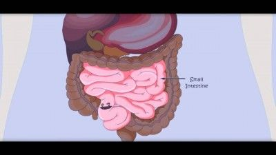 Your Gut – Part 2, Is it the Beginning or Ending to your Health? - http://www.buildingasimplelife.com/your-gut-part-2-is-it-the-beginning-or-ending-to-your-health/