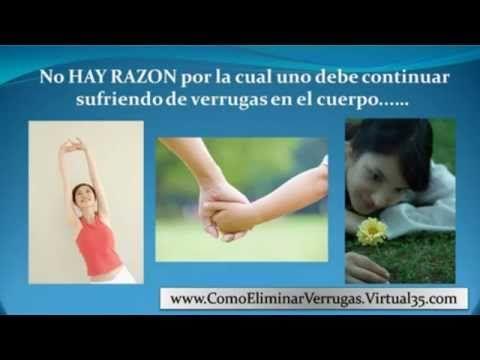 remedios para verrugas - tratamiento verrugas - verrugas planas en la cara - http://solucionparaelacne.org/blog/remedios-para-verrugas-tratamiento-verrugas-verrugas-planas-en-la-cara/