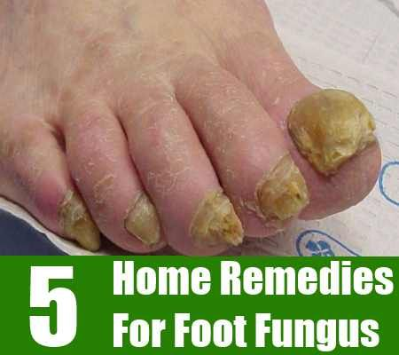 http://mkthlth2.digimkts.com  This is simply the BEST EVER!  in between toe fungus  Foot fungus is also known as athlete's foot. This infection is a common form of dermatitis which affects the webs of the toes and soles of the feet. The skin b