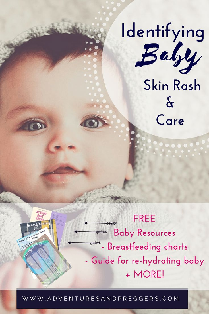 Baby Skin Rash Care + Baby Skin Care Learn The Mostmon Types Of Baby