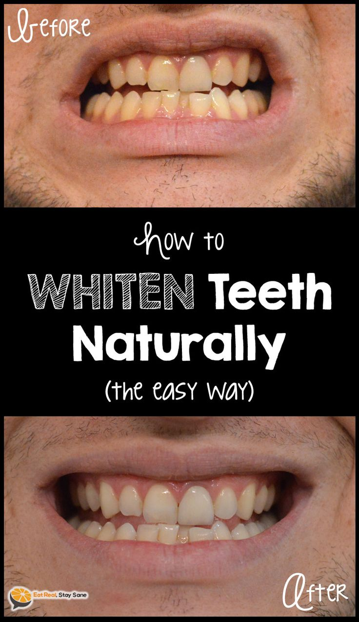 Colgate teeth whitening teeth whitening products pinterest teeth - The Easy Way To Whiten Teeth With Activated Charcoal