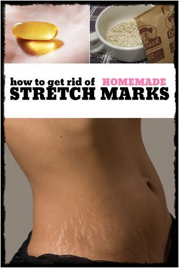 This Home Treatment Will REMOVE Your Scars and Stretch Marks