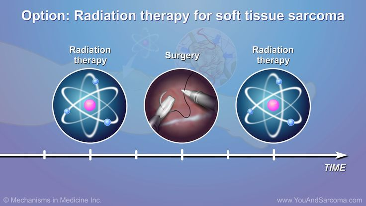 Radiation Therapy for Soft Tissue Sarcoma
