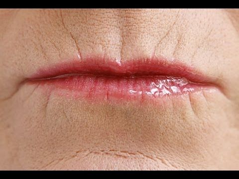 Facial Flexing Workout: How To Get Rid Of Perioral Wrinkles Around The M...