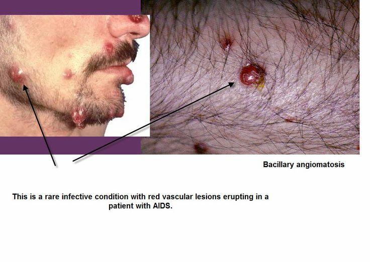 bacillary angiomatosis - common in AIDS - Bartonella henselae