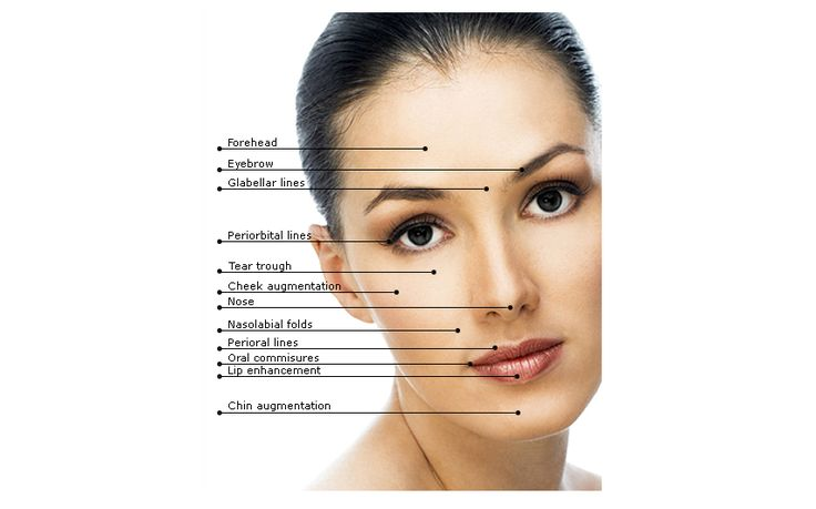 A thread facelift is a convenient, less invasive alternative to traditional face-lifts, designed for people experiencing early signs of aging, such as minor facial sagging.