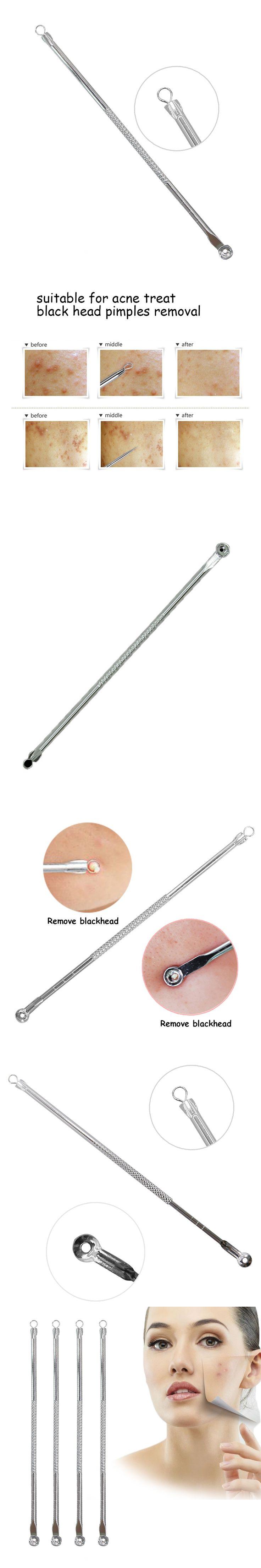 1pcs  Acne Removal Blemish Pimple Blackhead Extractor Tool Blackhead Remover Tool Comedone Remover Squeeze Pimples