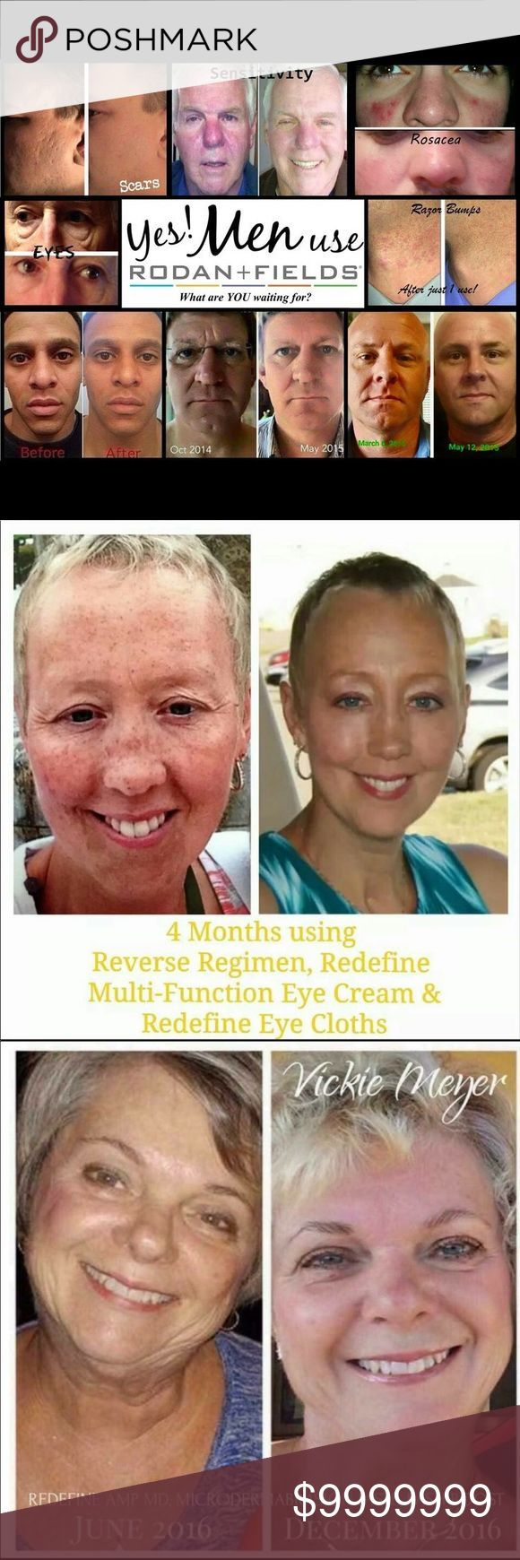 Rodan & Fields experience! Do you have a fool proof skin care regimen? Do you have a skin care concern you haven't found the right treatment for? Are you tired of trying things only to have them not work out and not able to get your money back? Well let me help you with all that! Rodan & Fields is the top skin care line currently and theirs a great reason why! Because it works! Contact me now on getting started. Acne, wrinkles, sun damage, sensitive skin. I got you covered! You'll love it or…