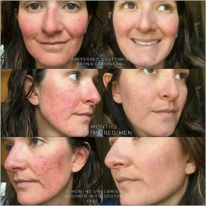 Results like this are not achievable, right? WRONG! Rodan+Fields didn't become the #1 Premium skin care company in the US just because of their name, it's because they have created EFFECTIVE products that give YOU noticeable results! I absolutely love all of these products and I am so proud to represent them! ❤ ksnodgrass1.myrandf.com