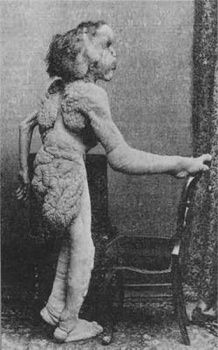 """Joseph Merrick """"The Elephant Man"""".  This, poor, sad young man was given a soul by the magnificent movie made some years ago.  He was an intelligent, gentle man trapped inside a grotesque body, and was still in his 20's when he died."""