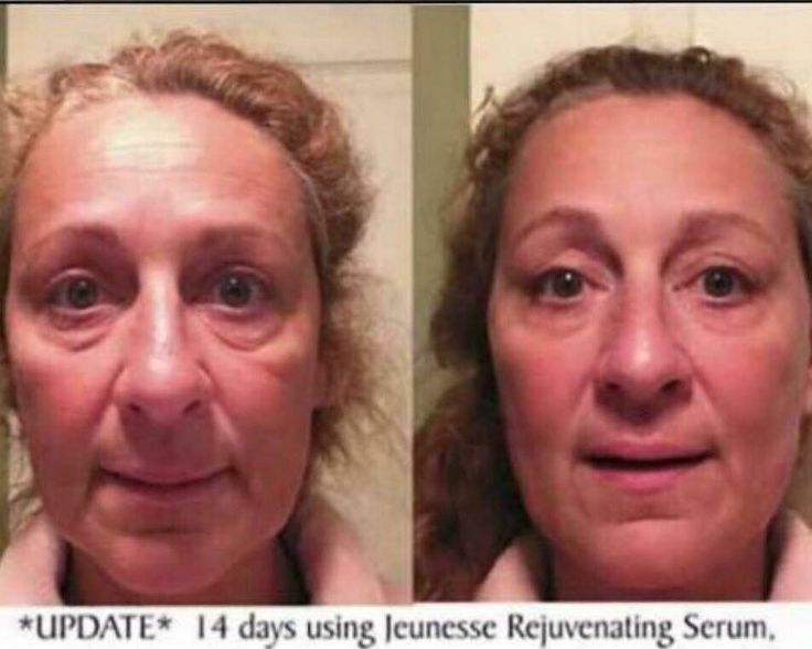 Luminesce cellular rejuvenation serum is a miracle in a bottle!