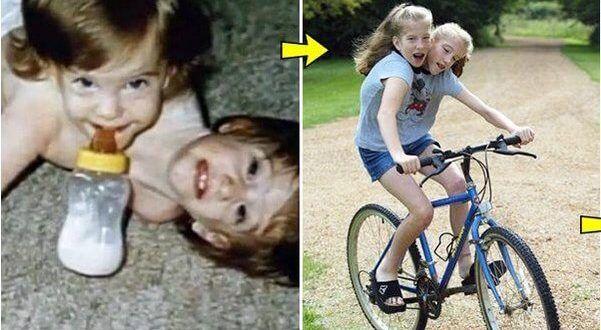 Yapışık ikizler Abby ve Britanya'yı hatırlıyor musunuz? Şimdi 27 yaşındalar! #enteresan #bilgiler #insanlar