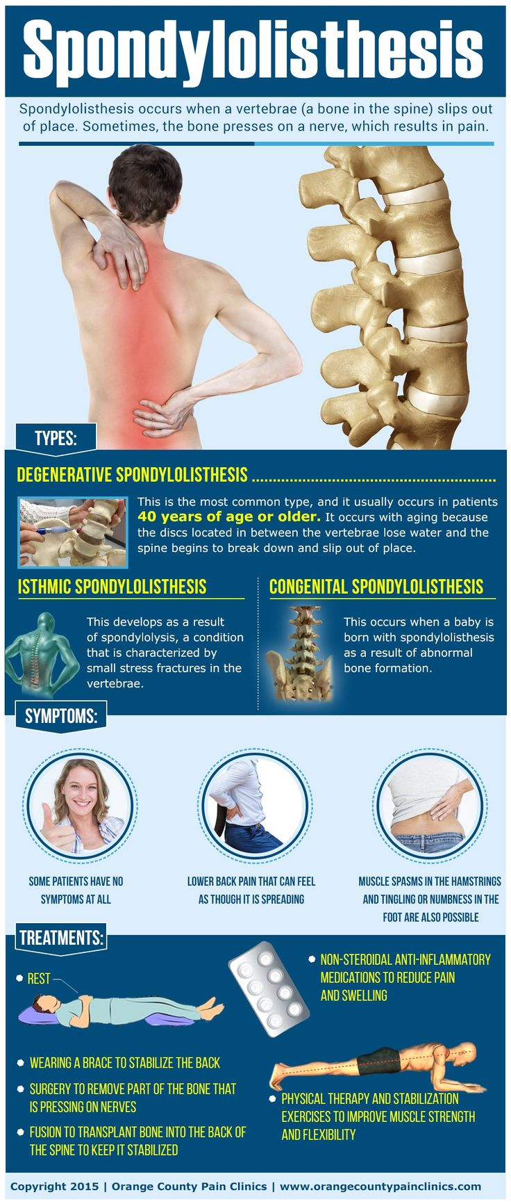 Spondylolisthesis by orange county pain clinics