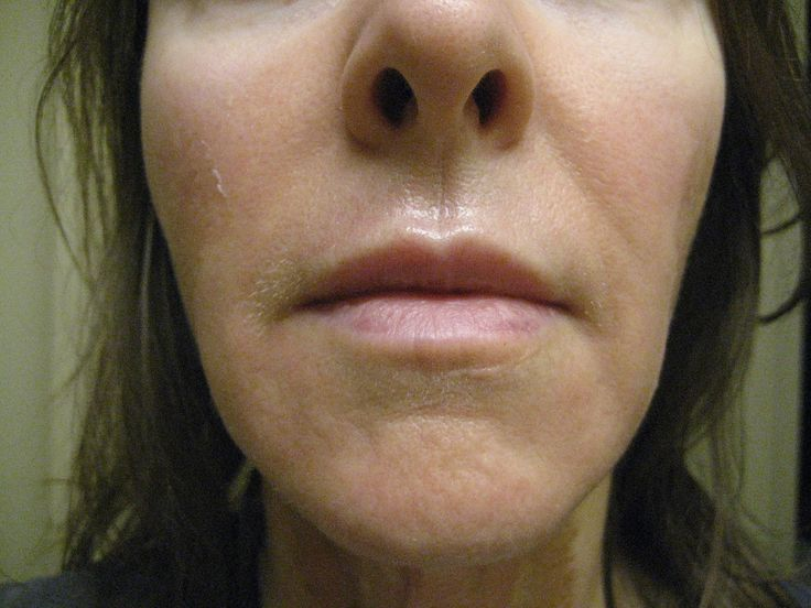 This 30% TCA chemical peel  has been my highest at home so far; and after doing it, I don't think I can go any higher at home because it was...