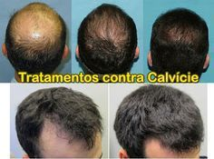 corte de cabelo da moda: tratamento para calvice masculina e feminina