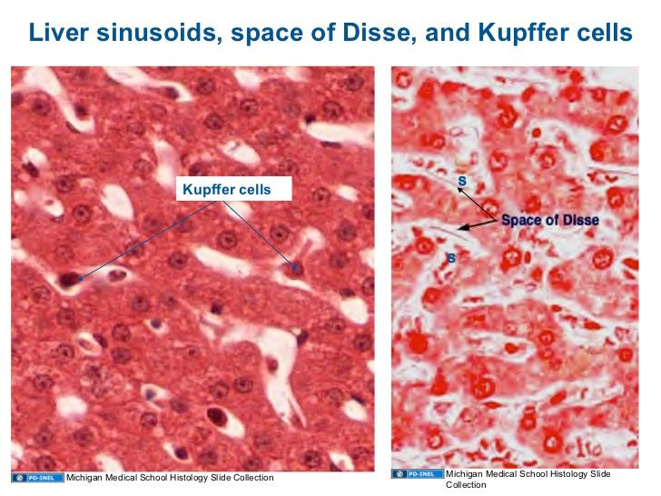 histology - liver - liver sinusoids, space of disse, and kupffer, Human Body