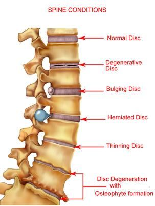 Great Spinal Cord Condition image..