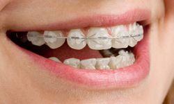 Clear (Ceramic) Braces #braces #orthodontist