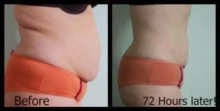 This woman had AMAZING results from only 1 wrap! She changed her diet and went very green before wrapping and this is what it did for her! Yes, this is only 1 wrap, 72 hours after!  The wrap continues working for 72 hours after applying