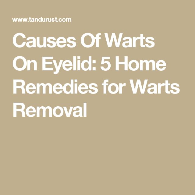 Causes Of Warts On Eyelid: 5 Home Remedies for Warts Removal