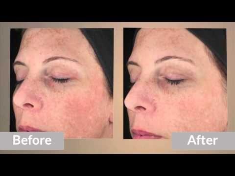 34 Best Images About Van Dam Dermatology On Pinterest