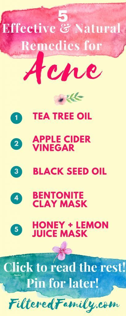 Natural remedy for acne | These natural remedies for acne really work! My favorite is the mask but I LOVE the apple cider vinegar toner too! If you have acne try these to naturally clean up for your beautiful face! -- Infographic - 5 Effective Natural Remedies for Acne | via http://FilteredFamily.com