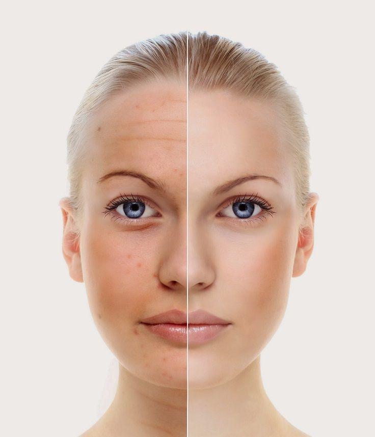 ひまし油は、顔の『シワ』を減らす効果の他、『美肌』効果があります。年齢を感じさせる肌の潤いや透明感をにも効くといわれているのでアンチエイジング美容に、実は最適なんです♪ 顔は、勿論のこと、ボディケアとしても世界中で高い効果が確認されていますので、使わない手はないかと思います♪