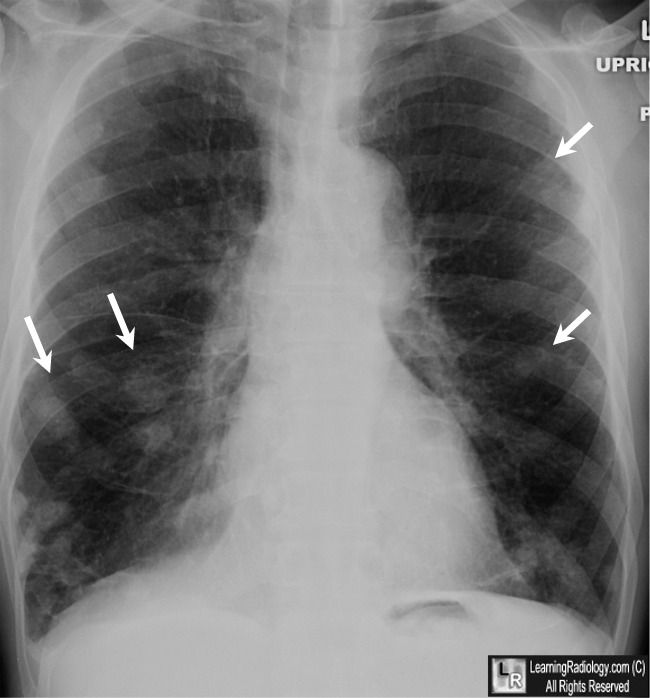 Rheumatoid nodules of the lung. (Nódulos reumatoides del pulmón) Fuente: Learning Radiology.